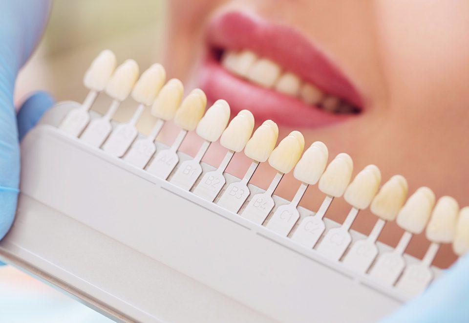 wybielanie zębów toruń - esthetic dental clinic
